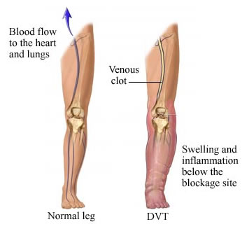what are symptoms of a blood clot in the lower leg