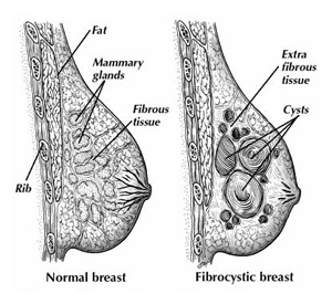 Breast changes during menapause