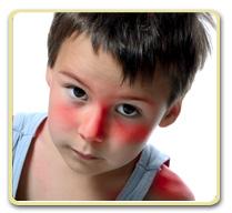 Sunburn Treatment